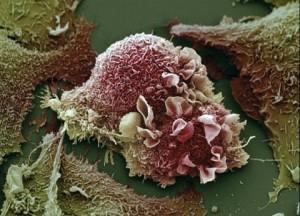 Celule canceroase