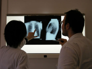Test tuberculoza